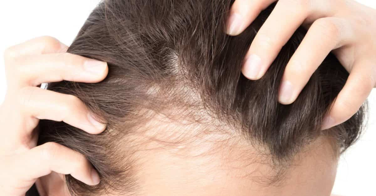 Know The Signs Of Hair Loss