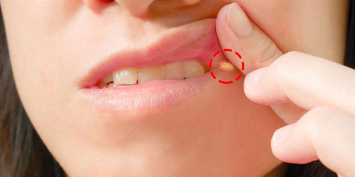Switch To Antifungal Cream For Angular Cheilitis