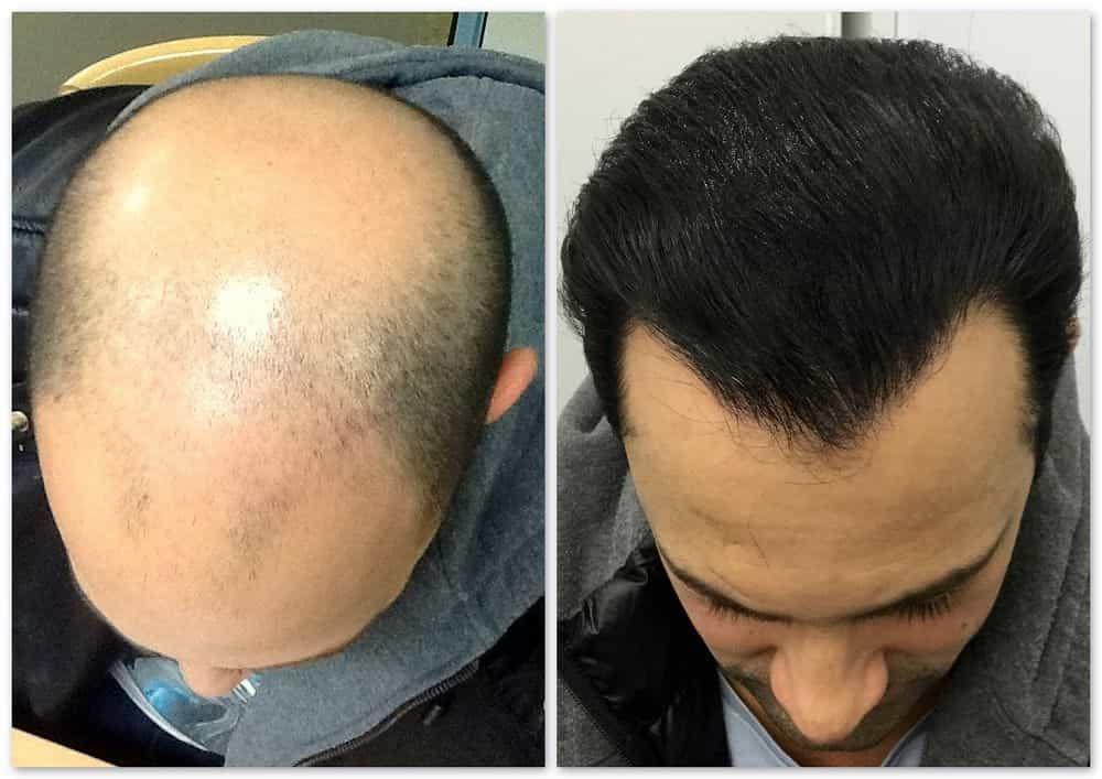 A Glimpse On Hair Transplant In Ludhiana Procedure