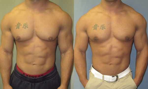How do you feel like after getting Gynecomastia Surgery?