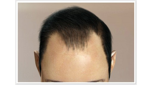 A Glimpse On Hair Transplant In Ludhiana Procedure!