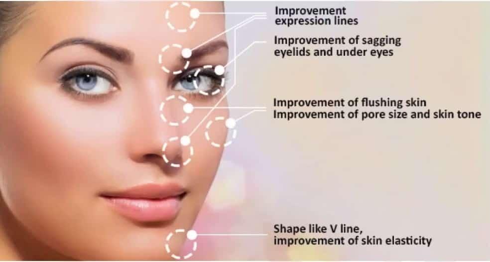 Multipolar RF In Aesthetic Dermatologists