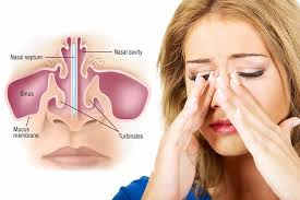 Sinus Infection Surgery