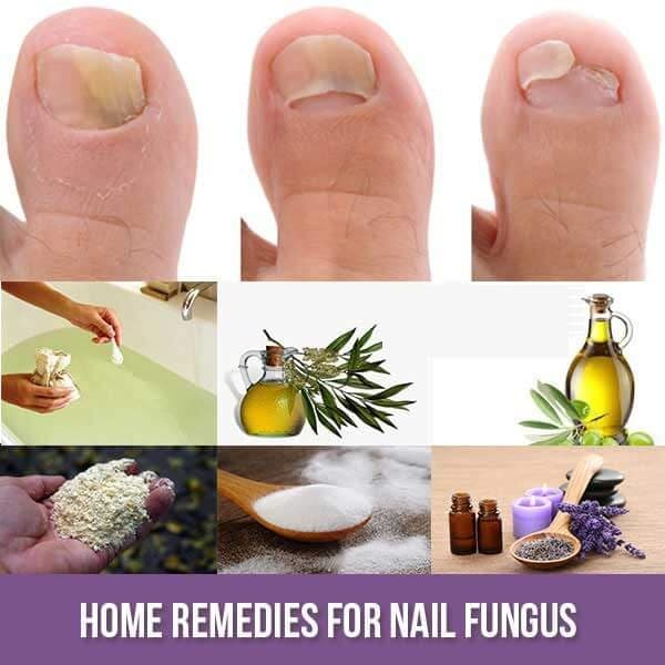 Stop Nail Fungal Infections Naturally