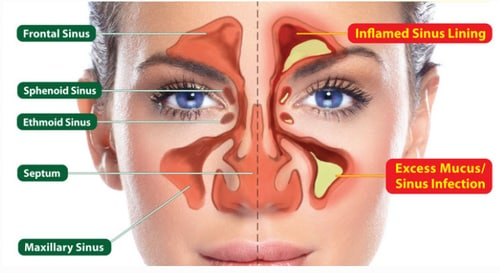 What is the cost of Sinus infection surgery