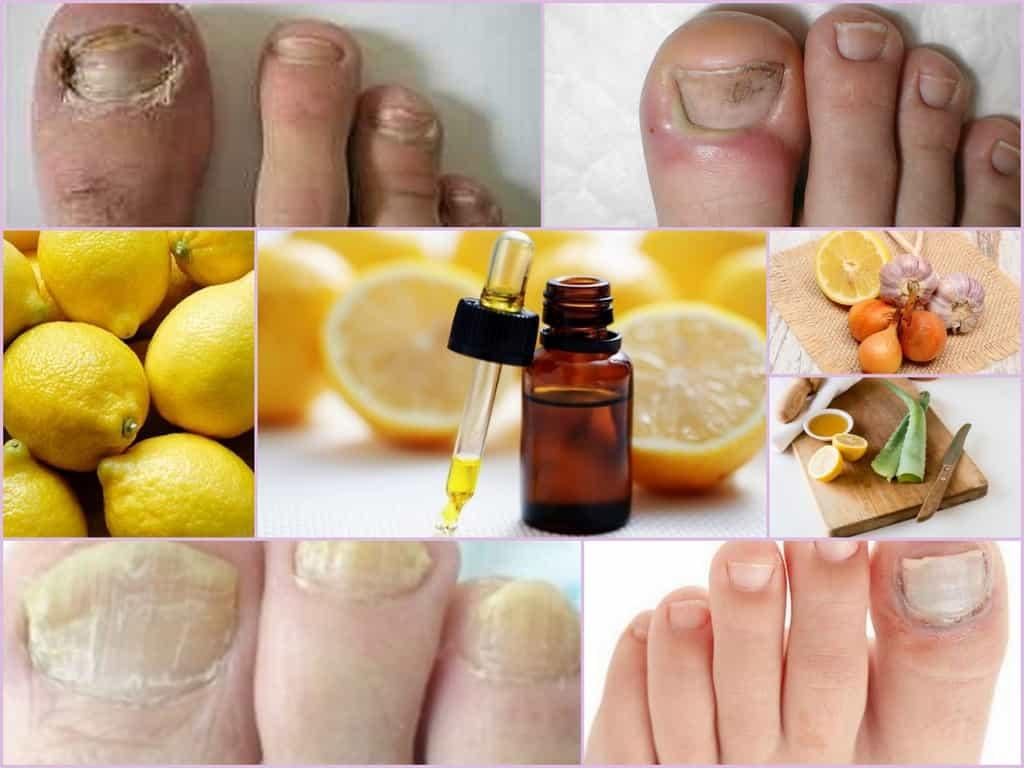 garlic, lemon and white vinegar for stopping nail fungus