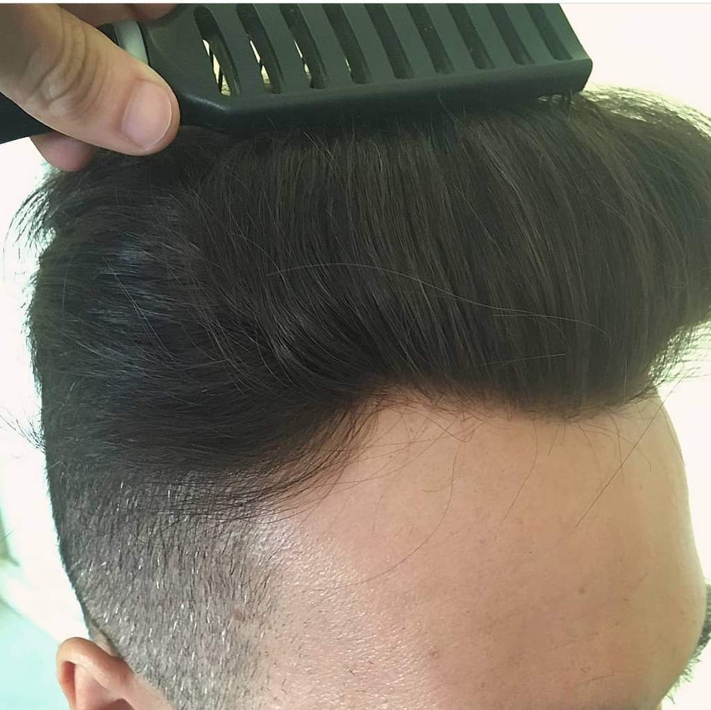 Answers To All Questions About Men's Hairpieces